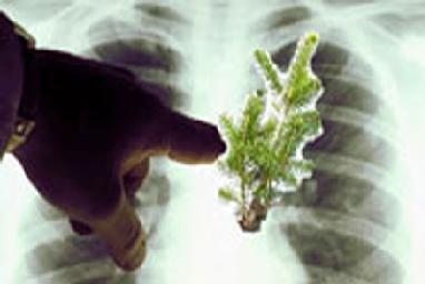 Akciğerinde AĞAÇ YETİŞTİ